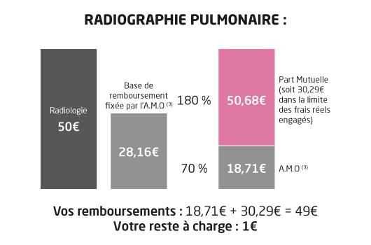 mutuelle librairie remboursement radio poumon